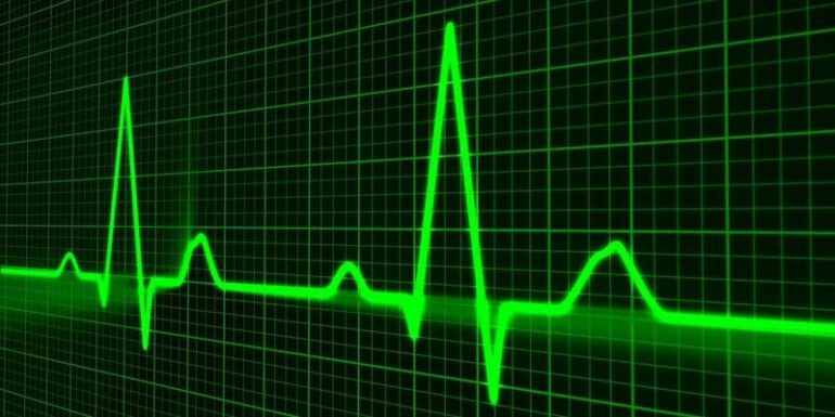 A heart rate chart.